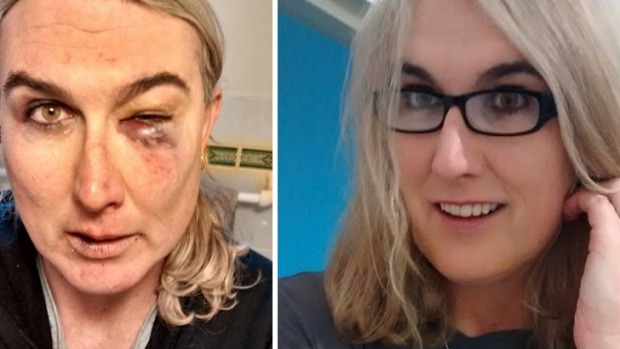 Stephanie McCarthy assault attack before and after